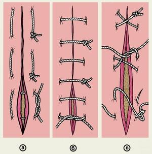Milyen legyen a műtét utáni varrás. Gyógyulás hasi műtét után
